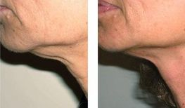 loose skin neck tightening