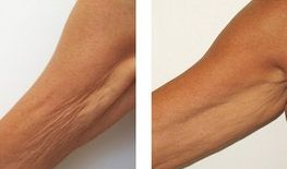 saggy arm skin tightening